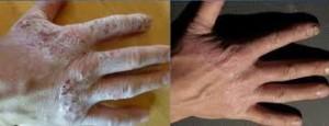 Renu28 - diseased hand healed