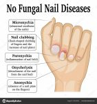 chart of fingernails and disease conditions